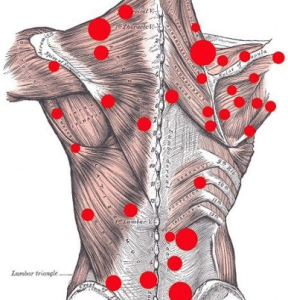 Trigger-point-diagram